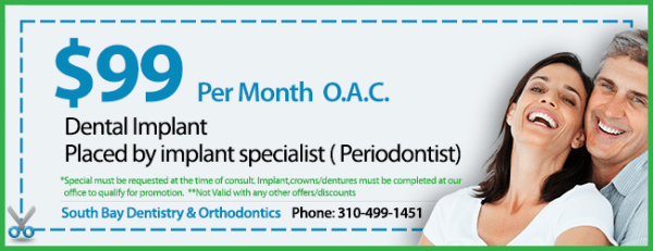 Coupon $99 per month  Implant Special O.A.C.
